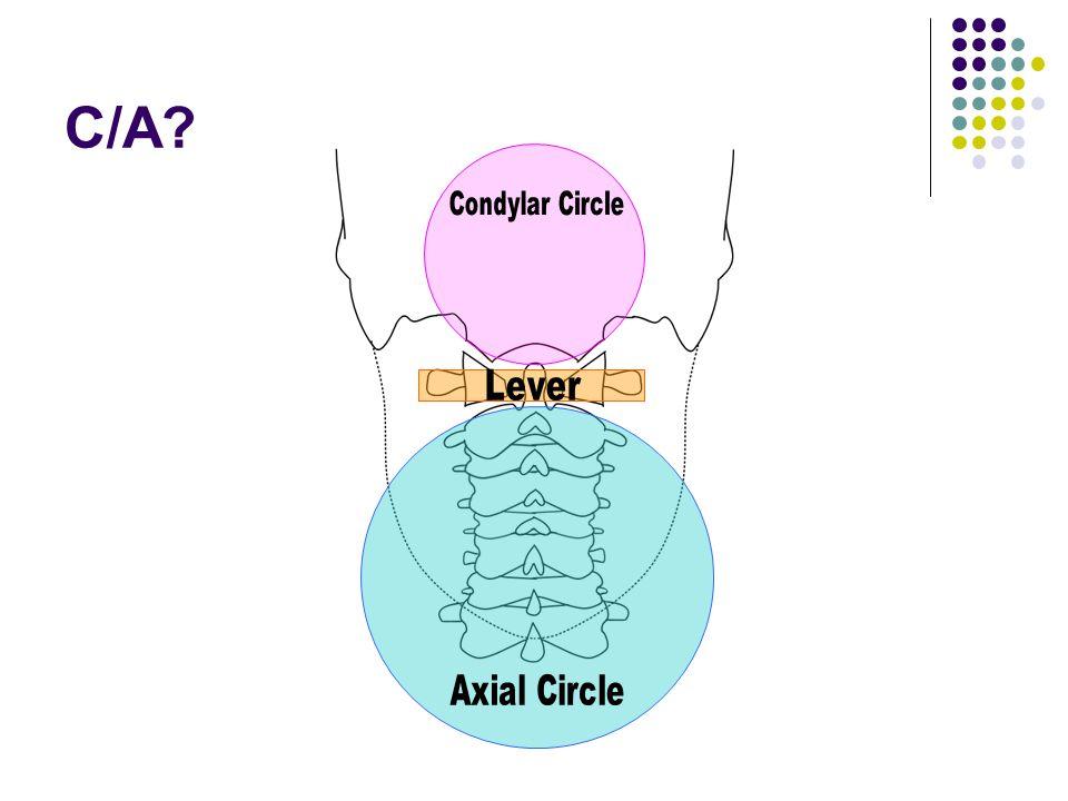 C/A Condylar Circle Lever Axial Circle
