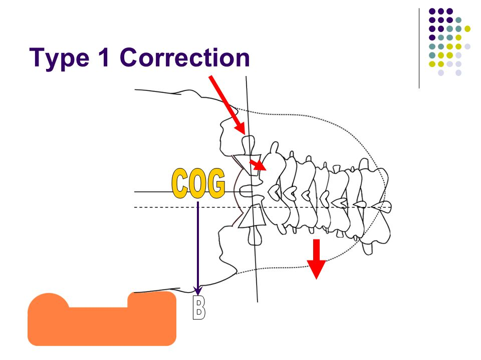 Type 1 Correction COG B