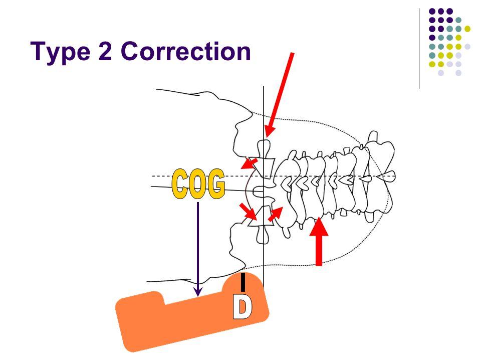 Type 2 Correction COG D