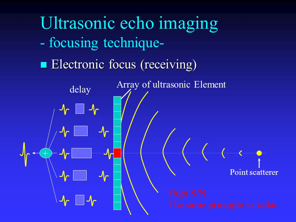 Ultrasonic echo imaging - focusing technique-