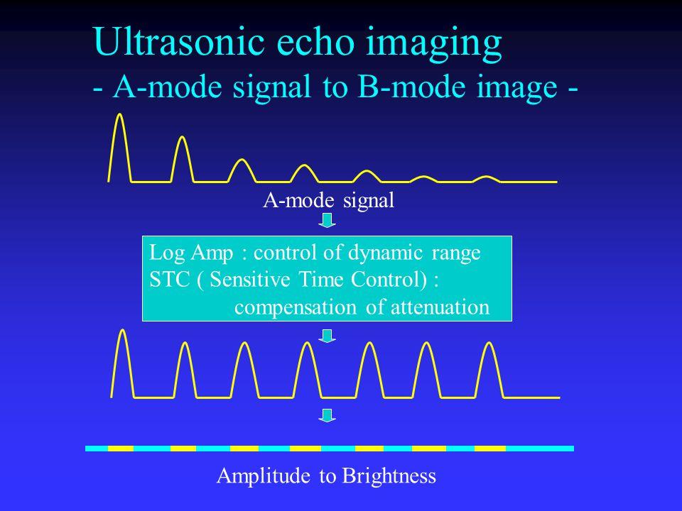 Ultrasonic echo imaging - A-mode signal to B-mode image -