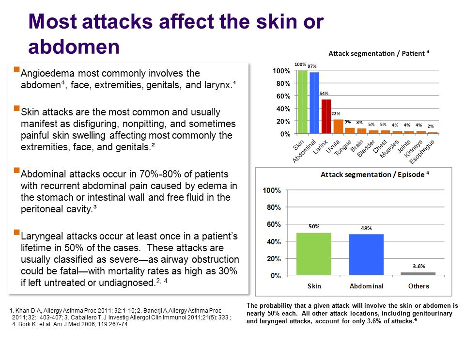 Most attacks affect the skin or abdomen