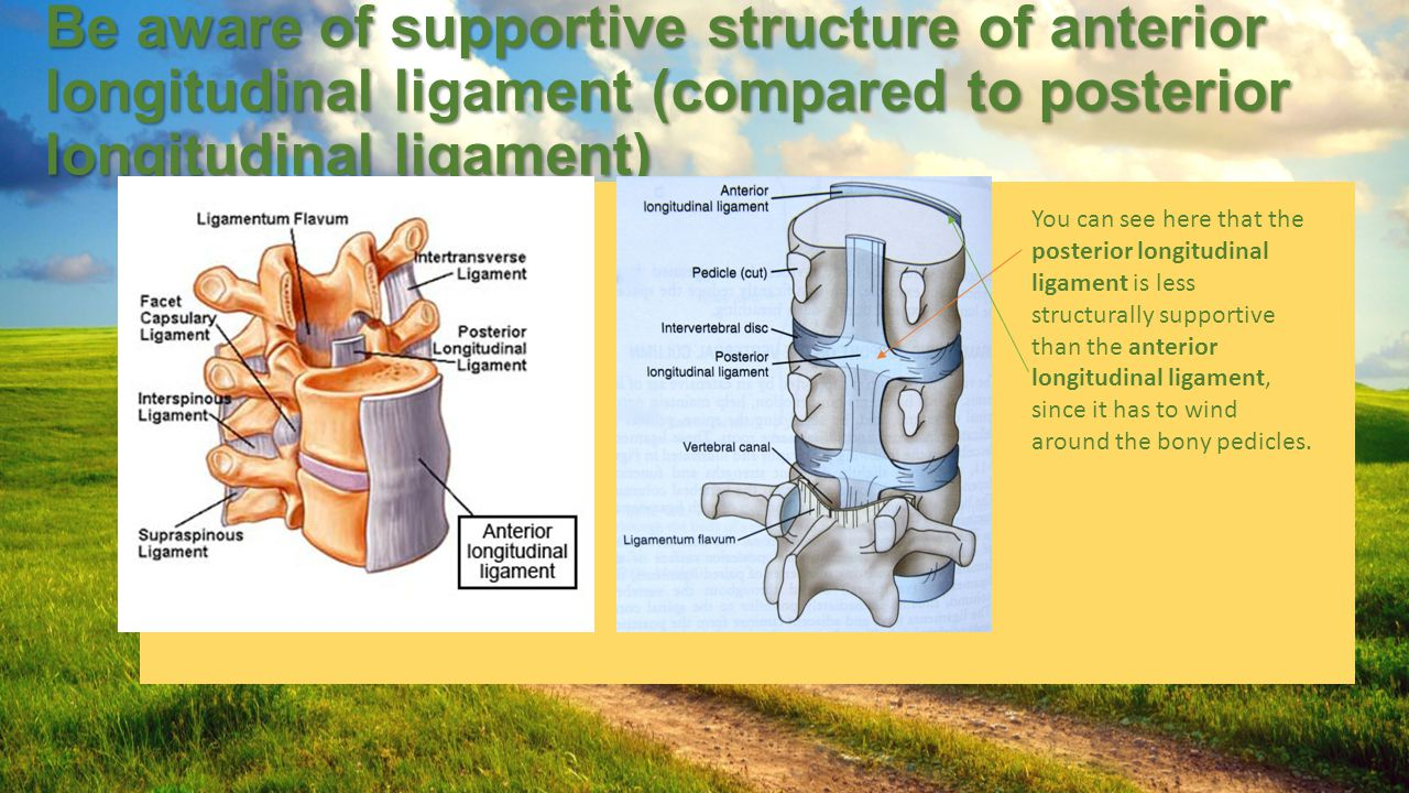 Be aware of supportive structure of anterior longitudinal ligament (compared to posterior longitudinal ligament)