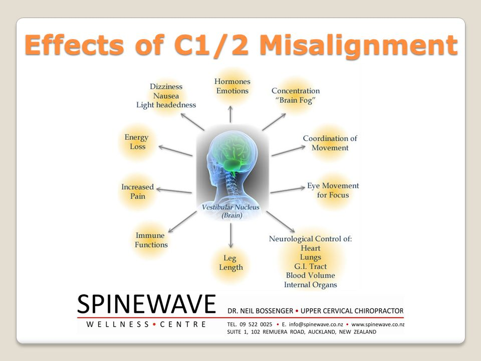 Effects of C1/2 Misalignment