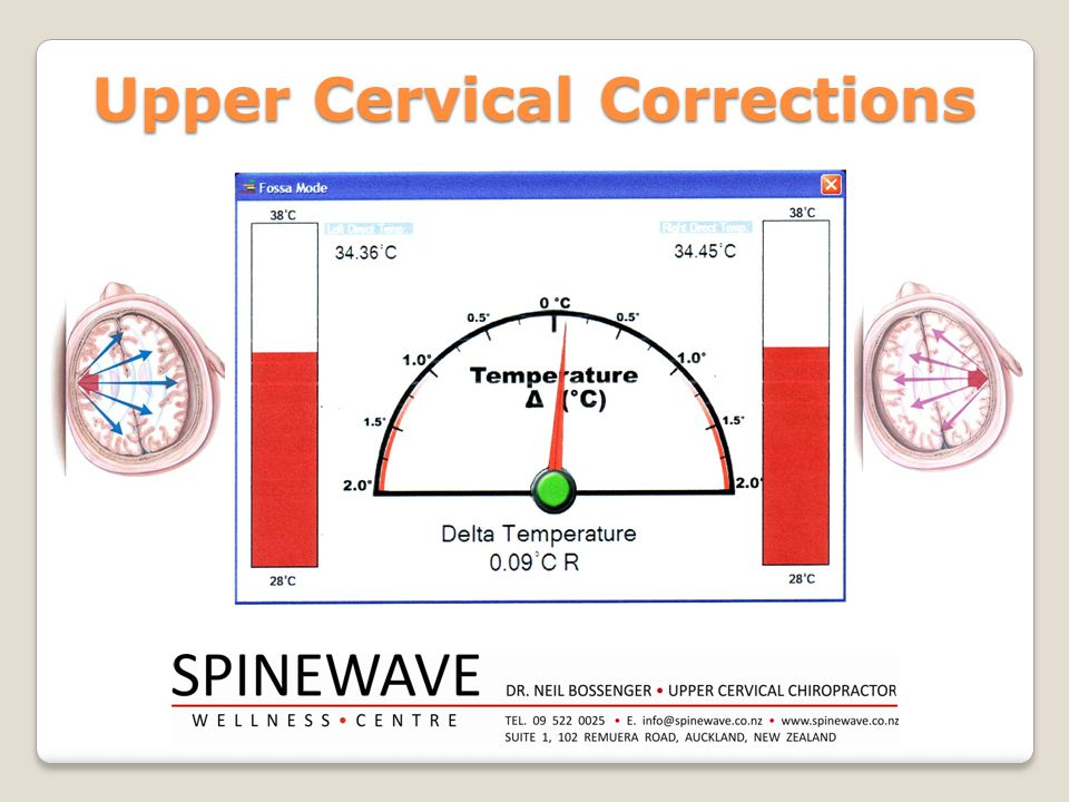 Upper Cervical Corrections