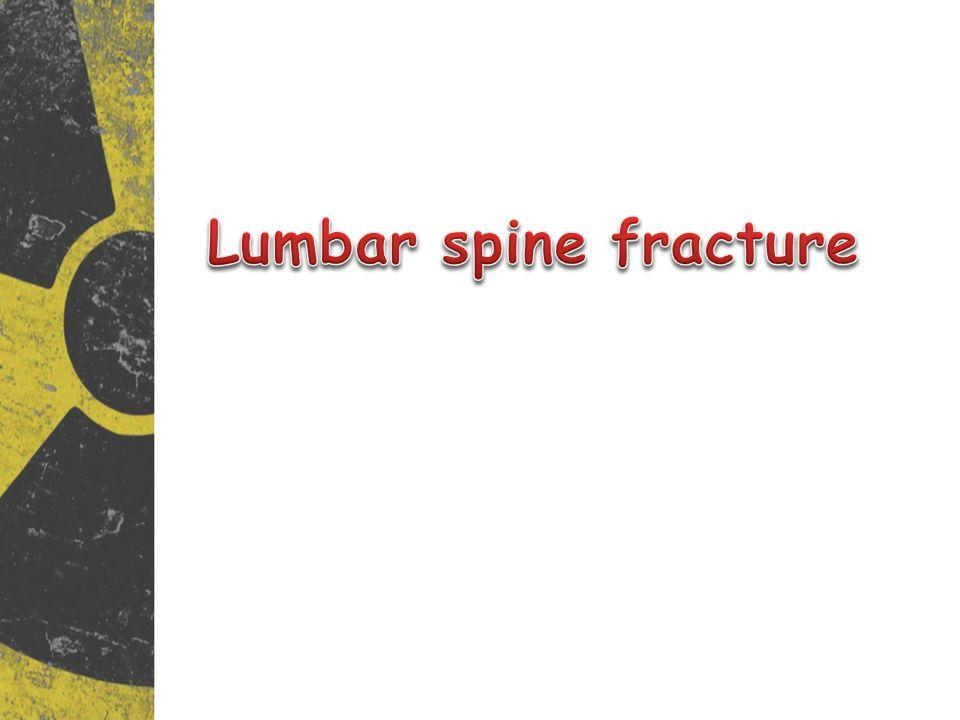 Lumbar spine fracture