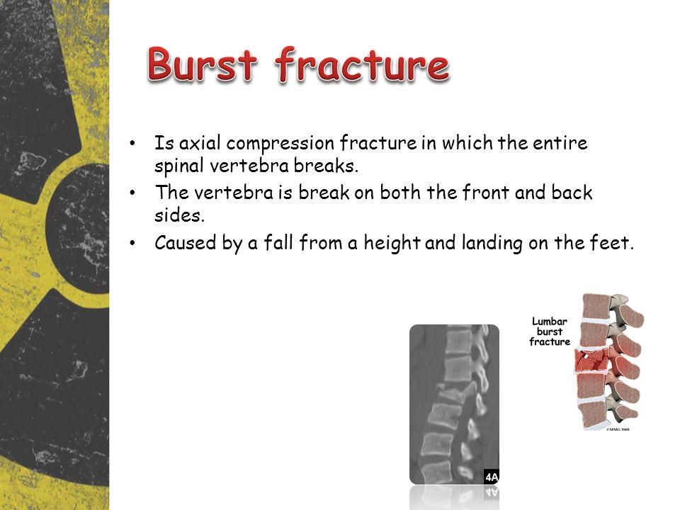 Burst fracture Is axial compression fracture in which the entire spinal vertebra breaks. The vertebra is break on both the front and back sides.