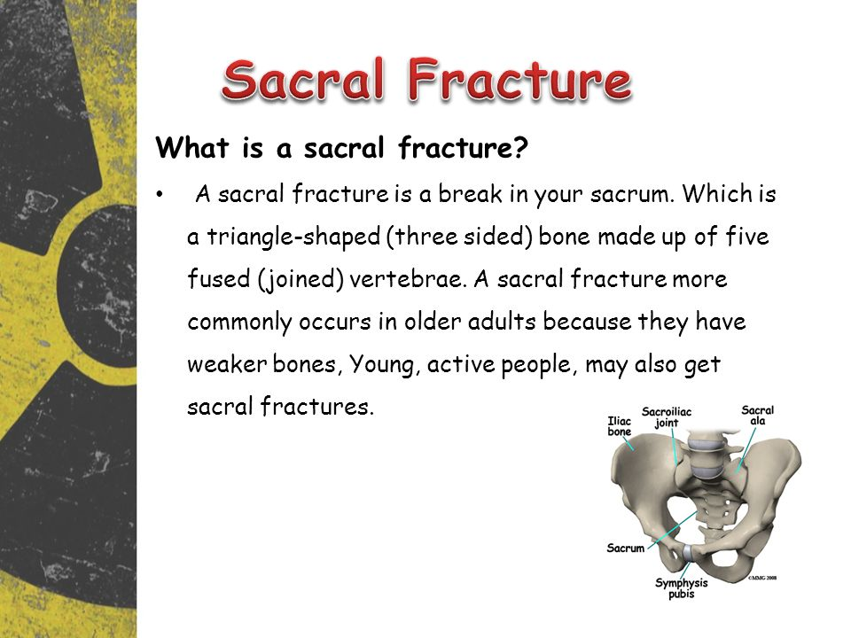Sacral Fracture What is a sacral fracture