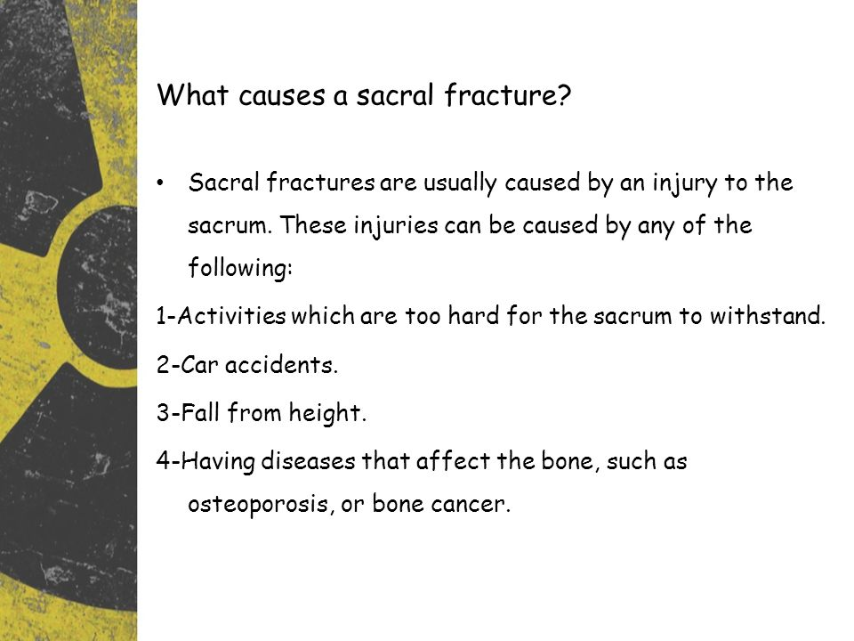 What causes a sacral fracture