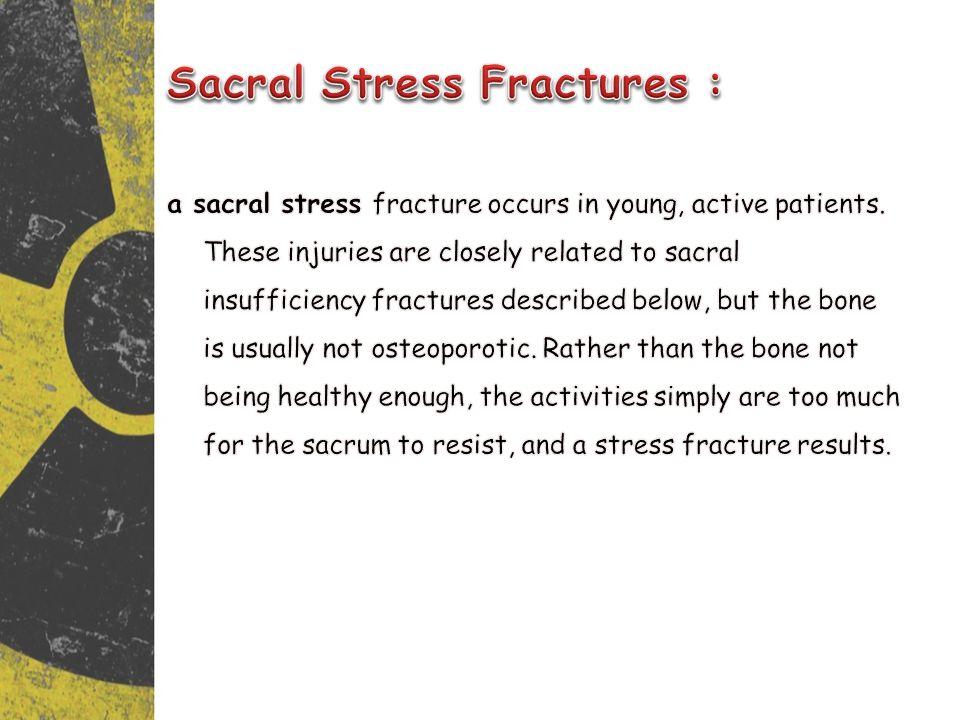 Sacral Stress Fractures :