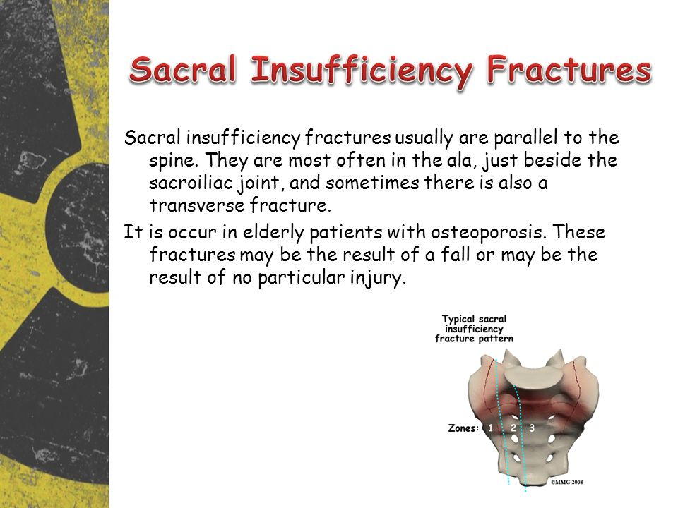 Sacral Insufficiency Fractures