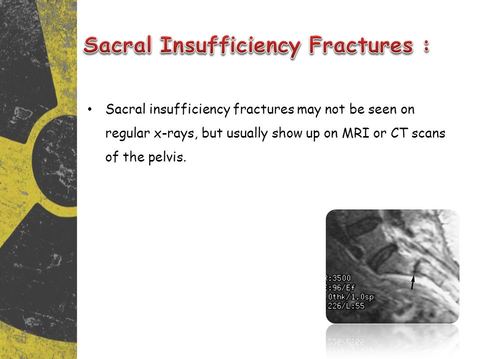 Sacral Insufficiency Fractures :