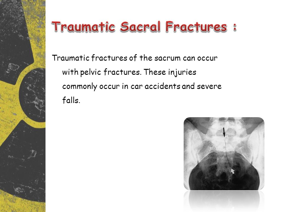 Traumatic Sacral Fractures :