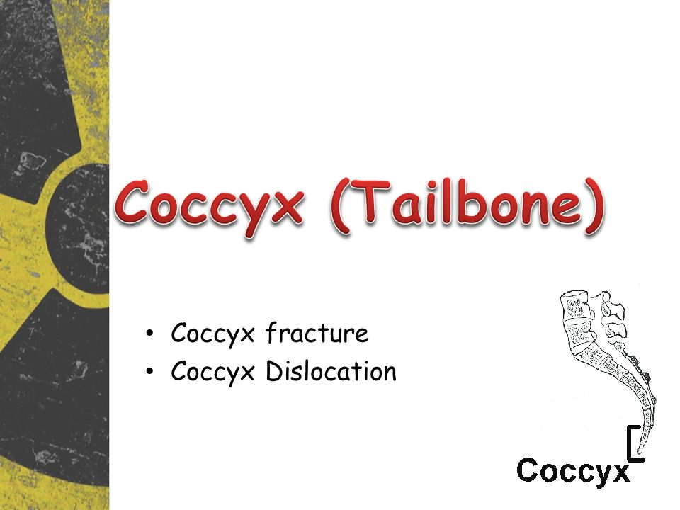 Coccyx (Tailbone) Coccyx fracture Coccyx Dislocation