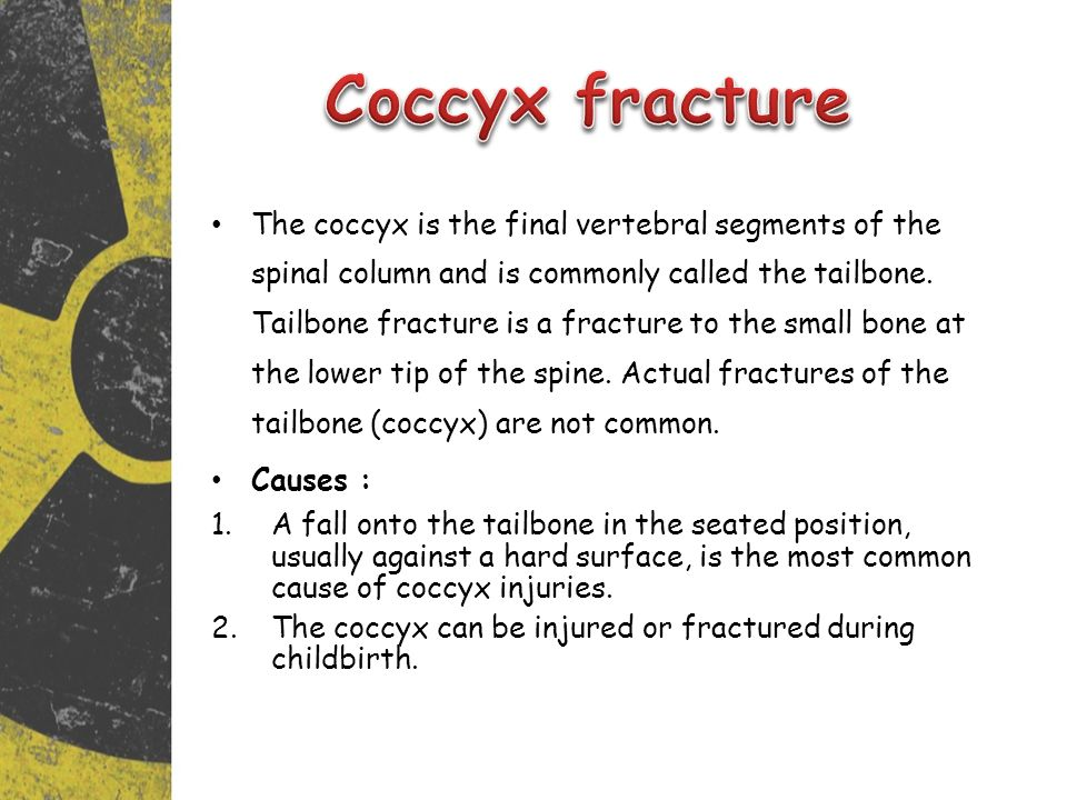 Coccyx fracture