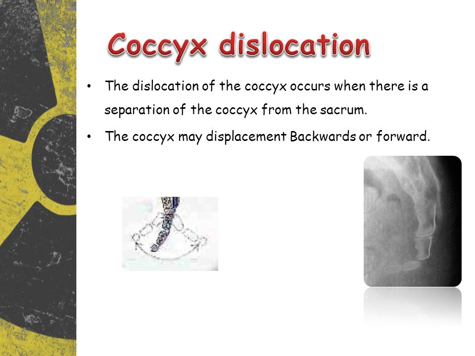 Coccyx dislocation The dislocation of the coccyx occurs when there is a separation of the coccyx from the sacrum.