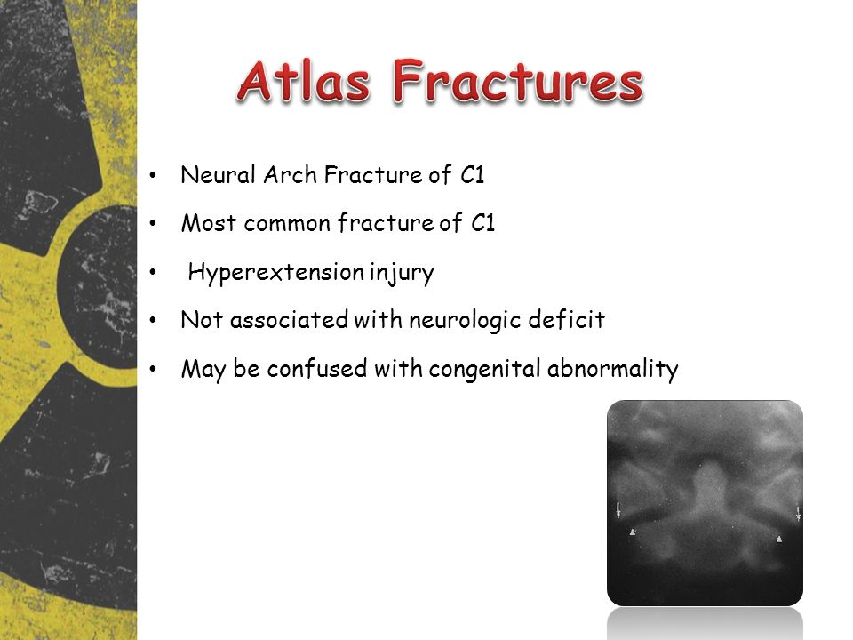 Atlas Fractures Neural Arch Fracture of C1 Most common fracture of C1