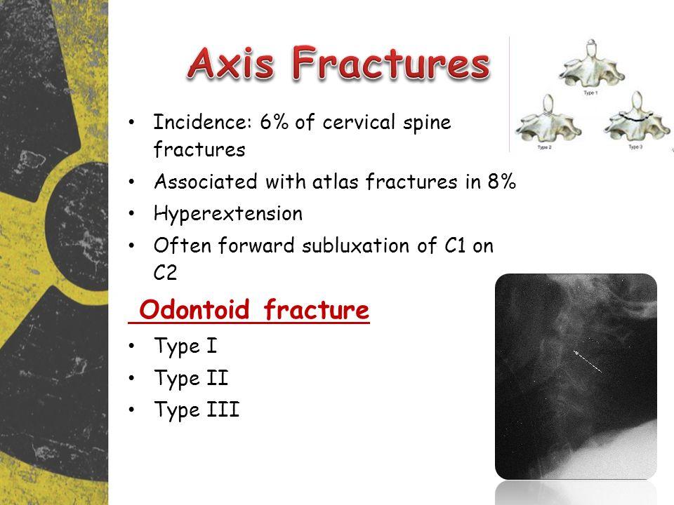Axis Fractures Odontoid fracture