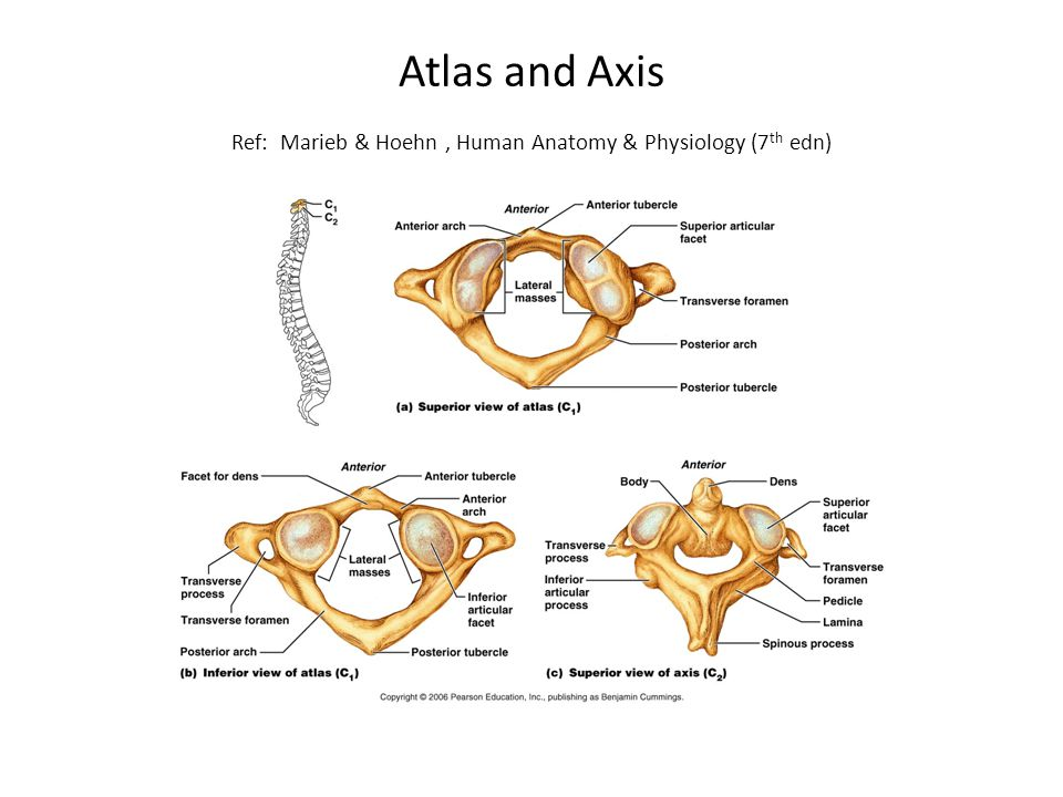 Atlas and Axis Ref: Marieb & Hoehn , Human Anatomy & Physiology (7th edn)