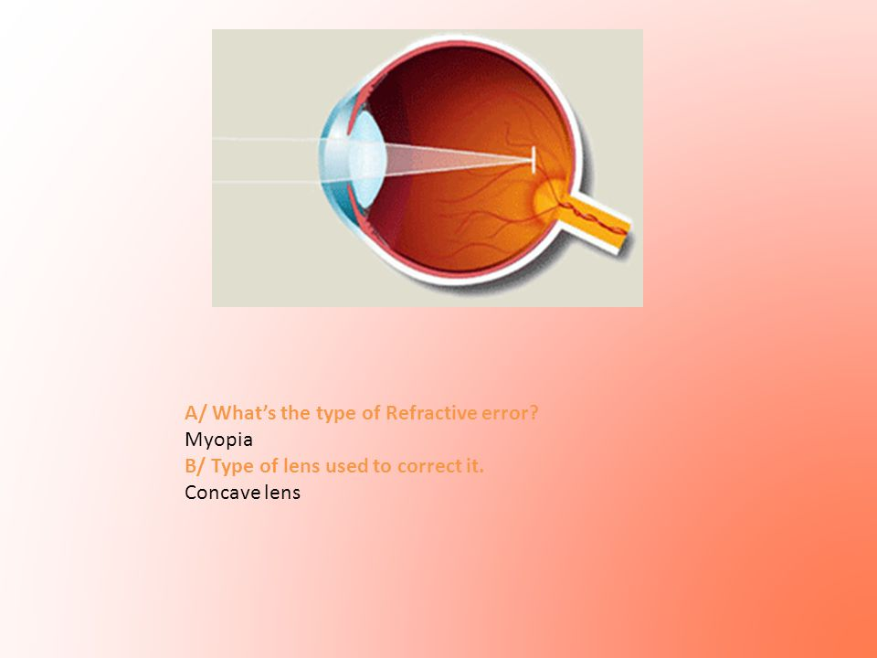 A/ What's the type of Refractive error