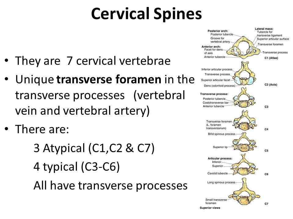 Cervical Spines They are 7 cervical vertebrae