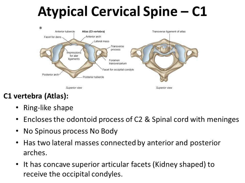 Atypical Cervical Spine – C1