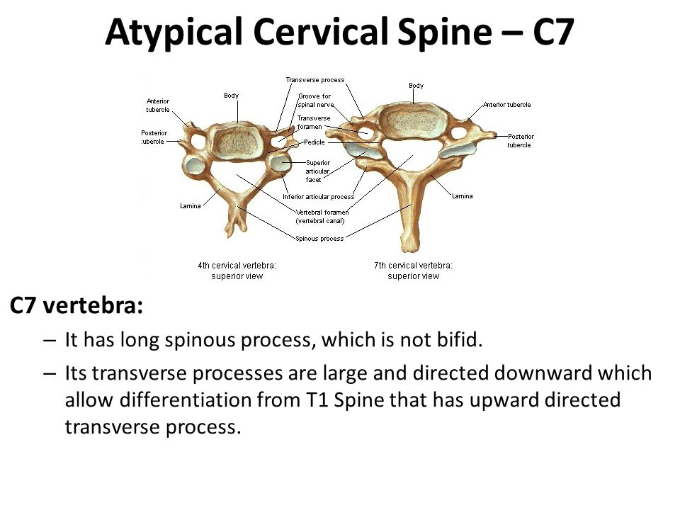 Atypical Cervical Spine – C7