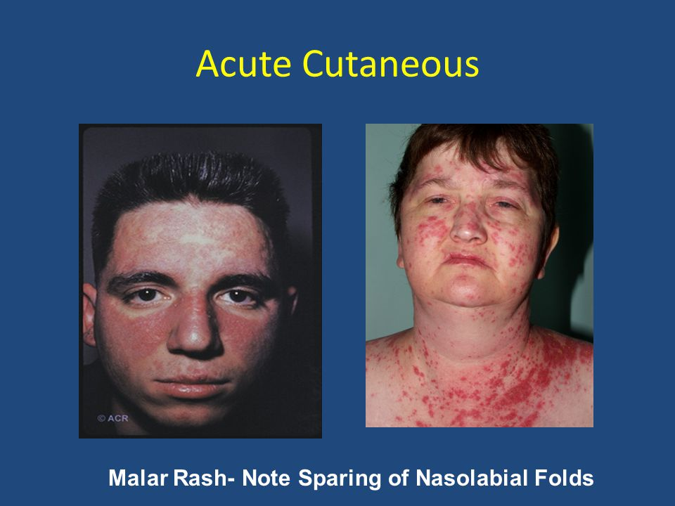 Acute Cutaneous Malar Rash- Note Sparing of Nasolabial Folds