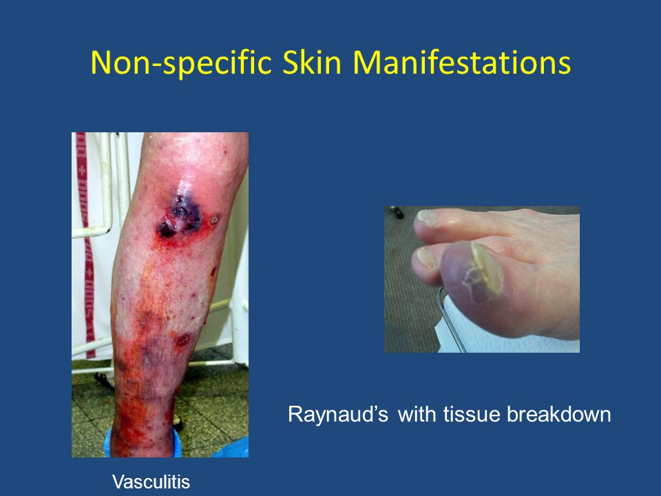 Non-specific Skin Manifestations