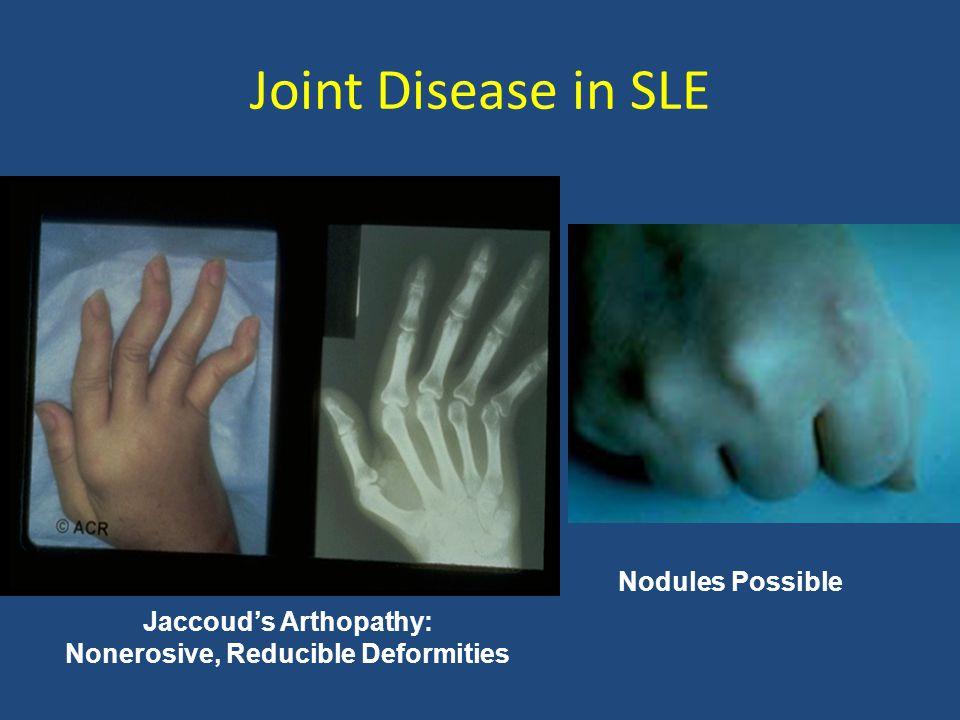 Jaccoud's Arthopathy: Nonerosive, Reducible Deformities