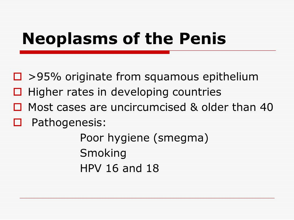 Neoplasms of the Penis >95% originate from squamous epithelium