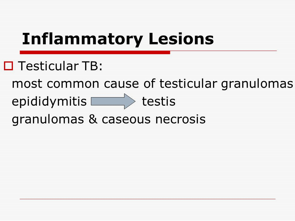 Inflammatory Lesions Testicular TB: