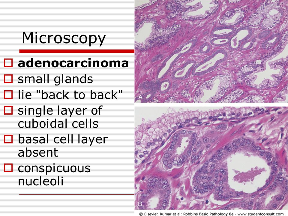 Microscopy adenocarcinoma small glands lie back to back