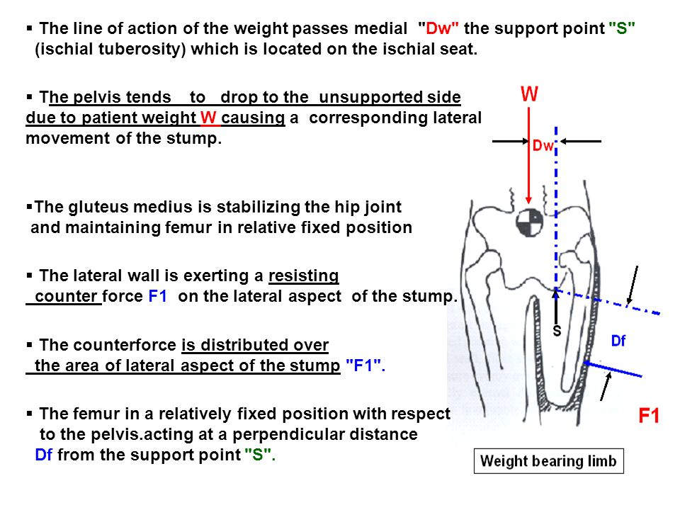 The line of action of the weight passes medial Dw the support point S