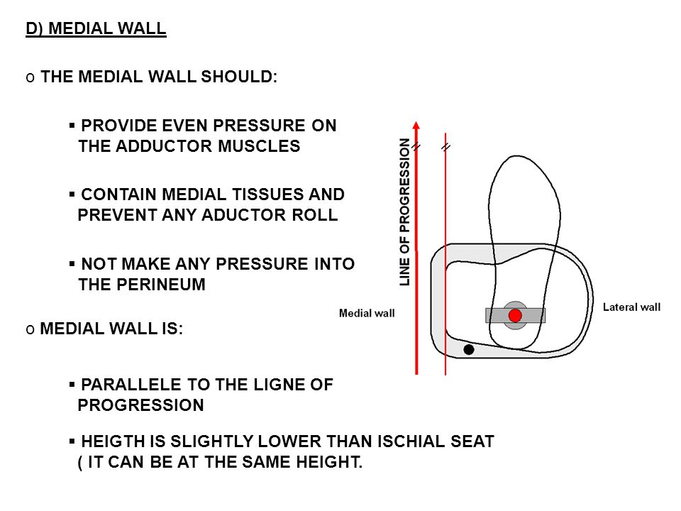 D) MEDIAL WALL THE MEDIAL WALL SHOULD: PROVIDE EVEN PRESSURE ON. THE ADDUCTOR MUSCLES. CONTAIN MEDIAL TISSUES AND.