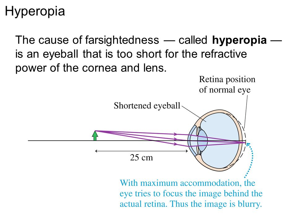 Hyperopia The cause of farsightedness — called hyperopia — is an eyeball that is too short for the refractive power of the cornea and lens.