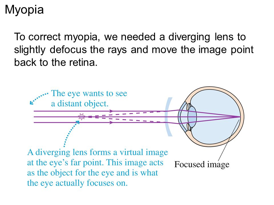 Myopia To correct myopia, we needed a diverging lens to slightly defocus the rays and move the image point back to the retina.