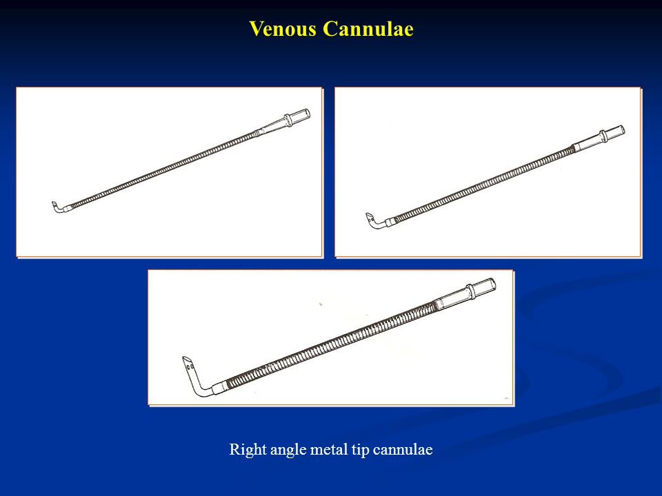 Right angle metal tip cannulae
