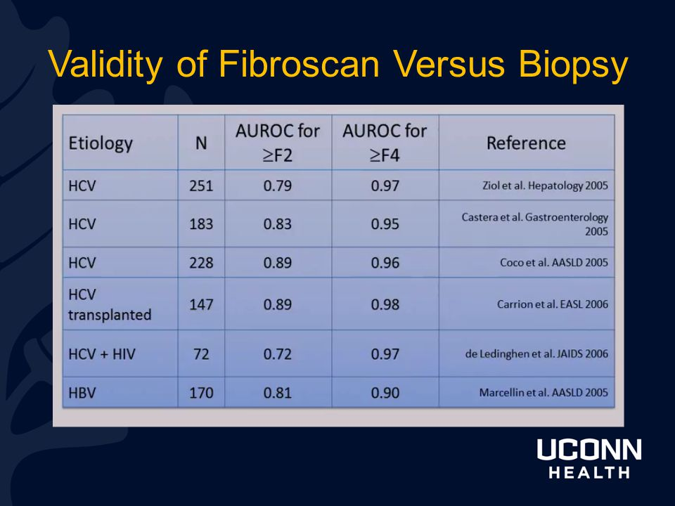 Validity of Fibroscan Versus Biopsy