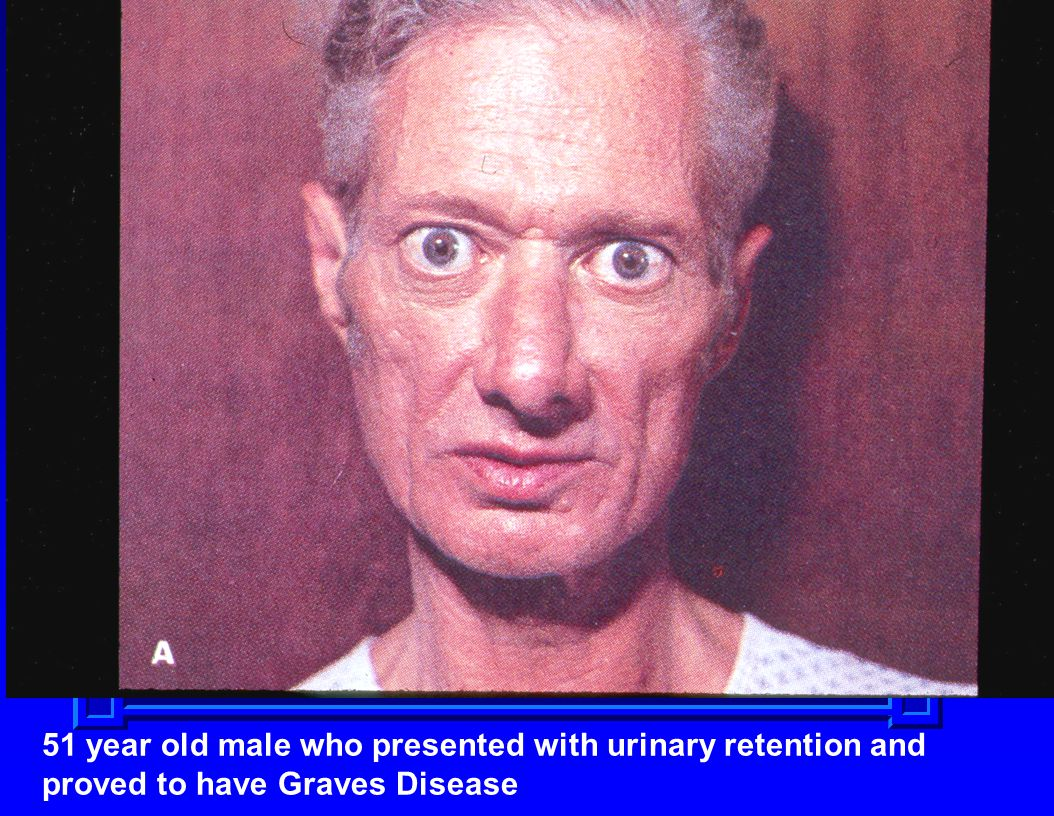 51 year old male who presented with urinary retention and proved to have Graves Disease
