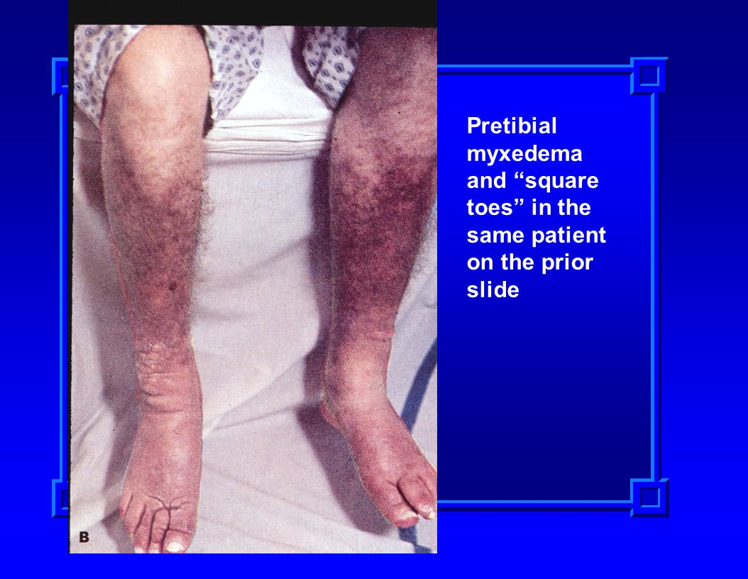 Pretibial myxedema and square toes in the same patient on the prior slide