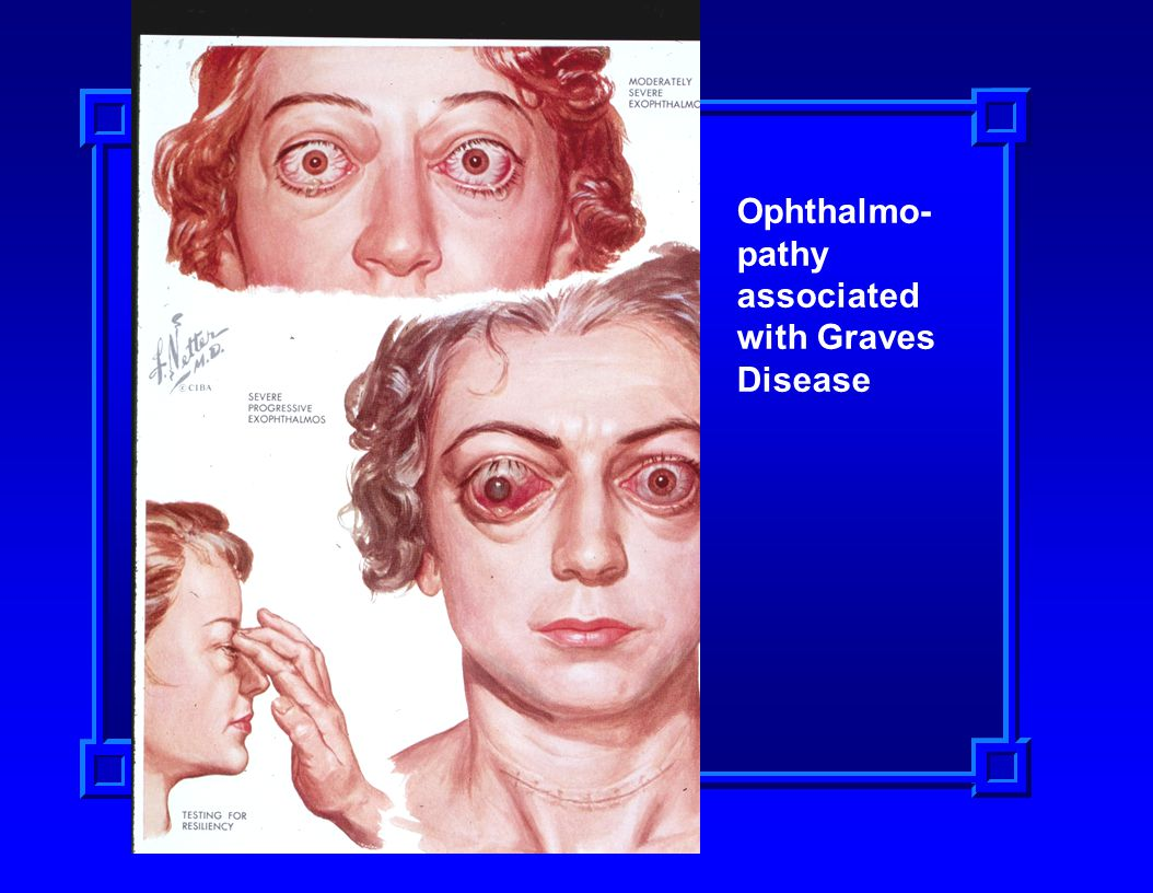 Ophthalmo- pathy associated with Graves Disease