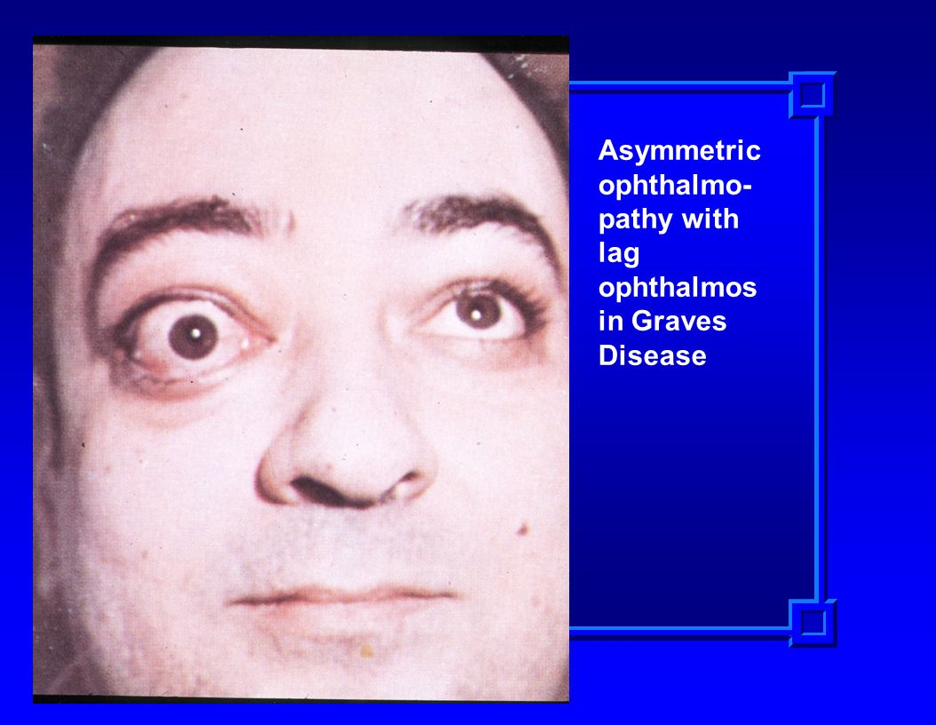 Asymmetric ophthalmo- pathy with lag ophthalmos in Graves Disease