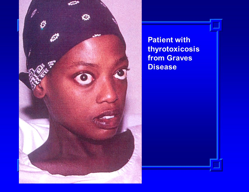 Patient with thyrotoxicosis from Graves Disease