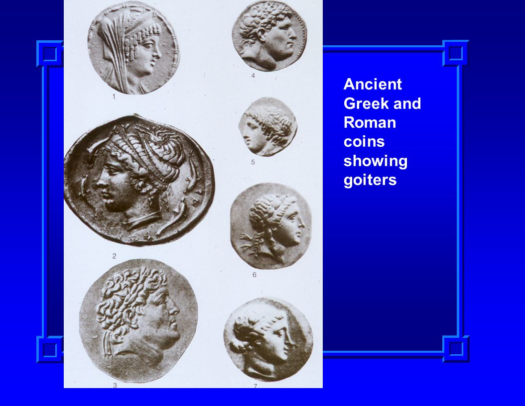 Ancient Greek and Roman coins showing goiters