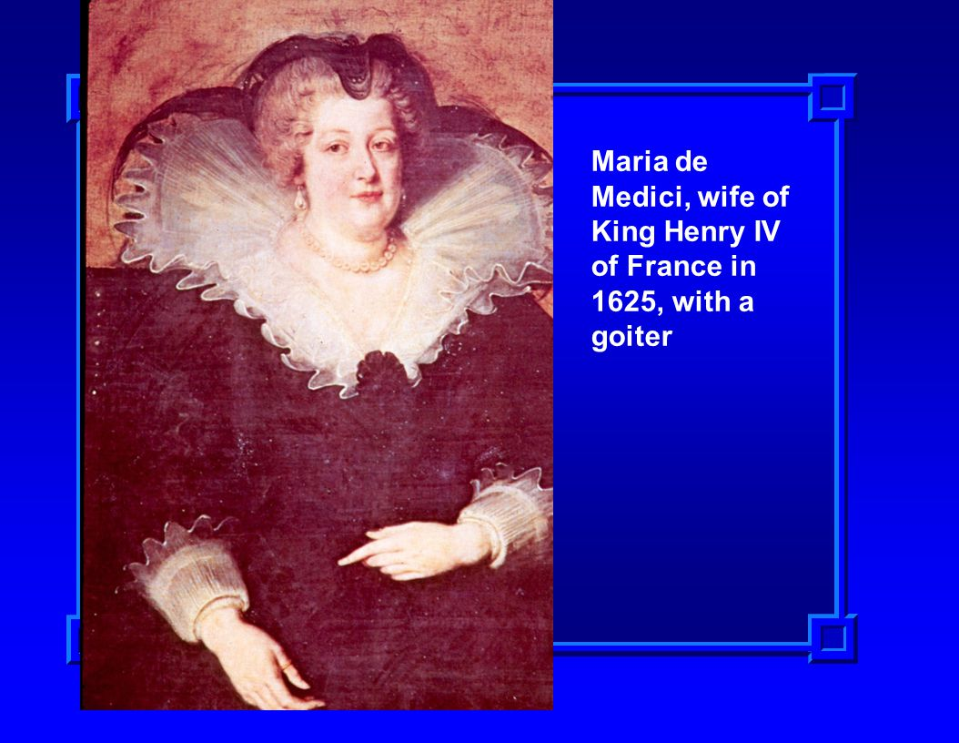 Maria de Medici, wife of King Henry IV of France in 1625, with a goiter