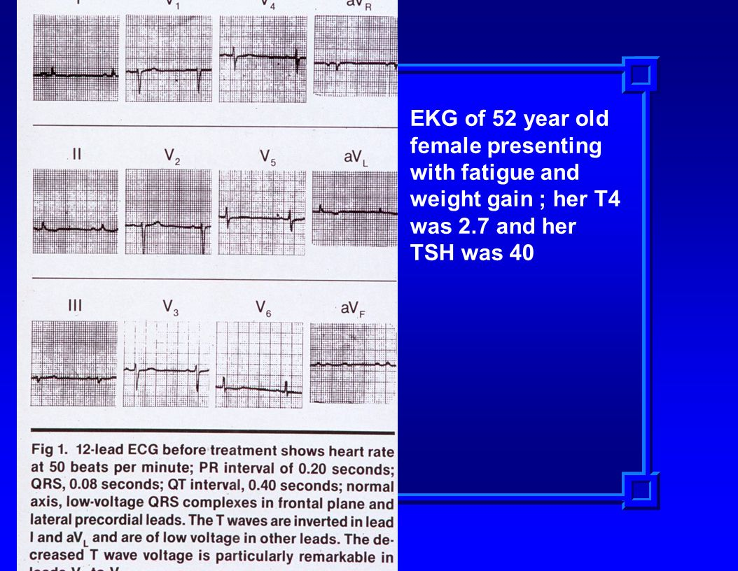 EKG of 52 year old female presenting with fatigue and weight gain ; her T4 was 2.7 and her TSH was 40