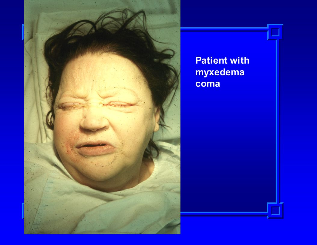 Patient with myxedema coma
