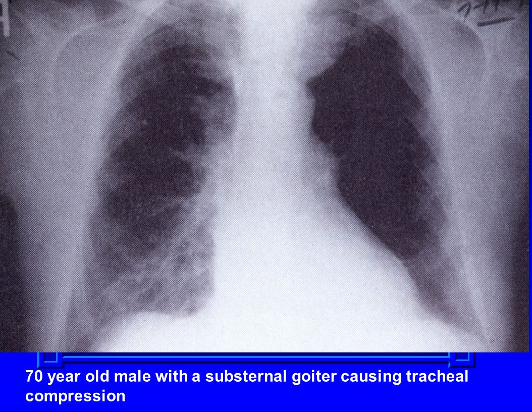 70 year old male with a substernal goiter causing tracheal compression