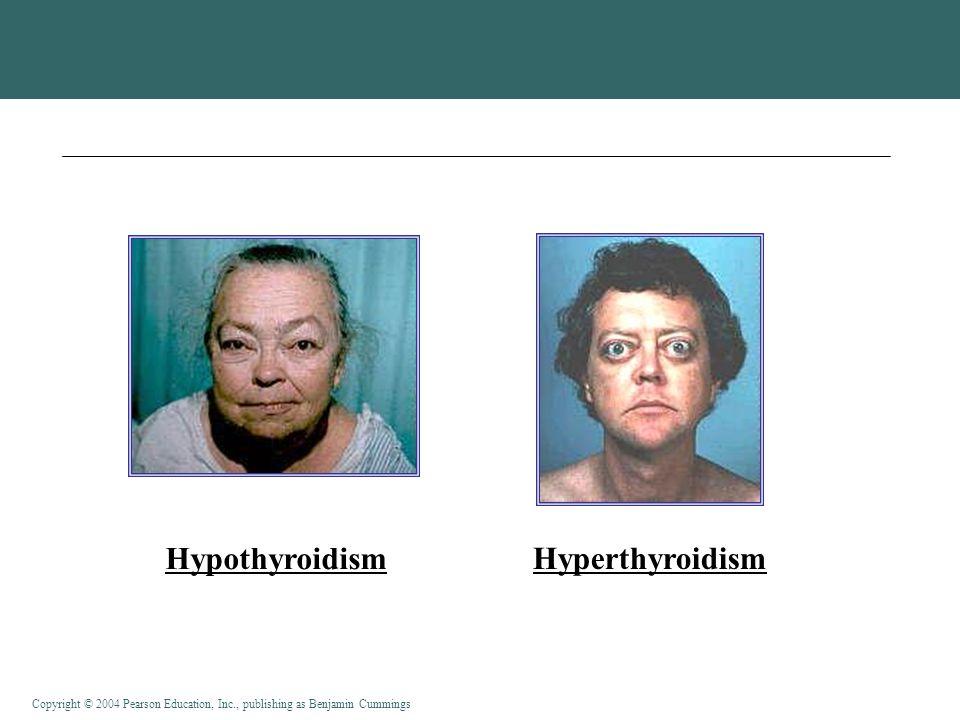 Hypothyroidism Hyperthyroidism
